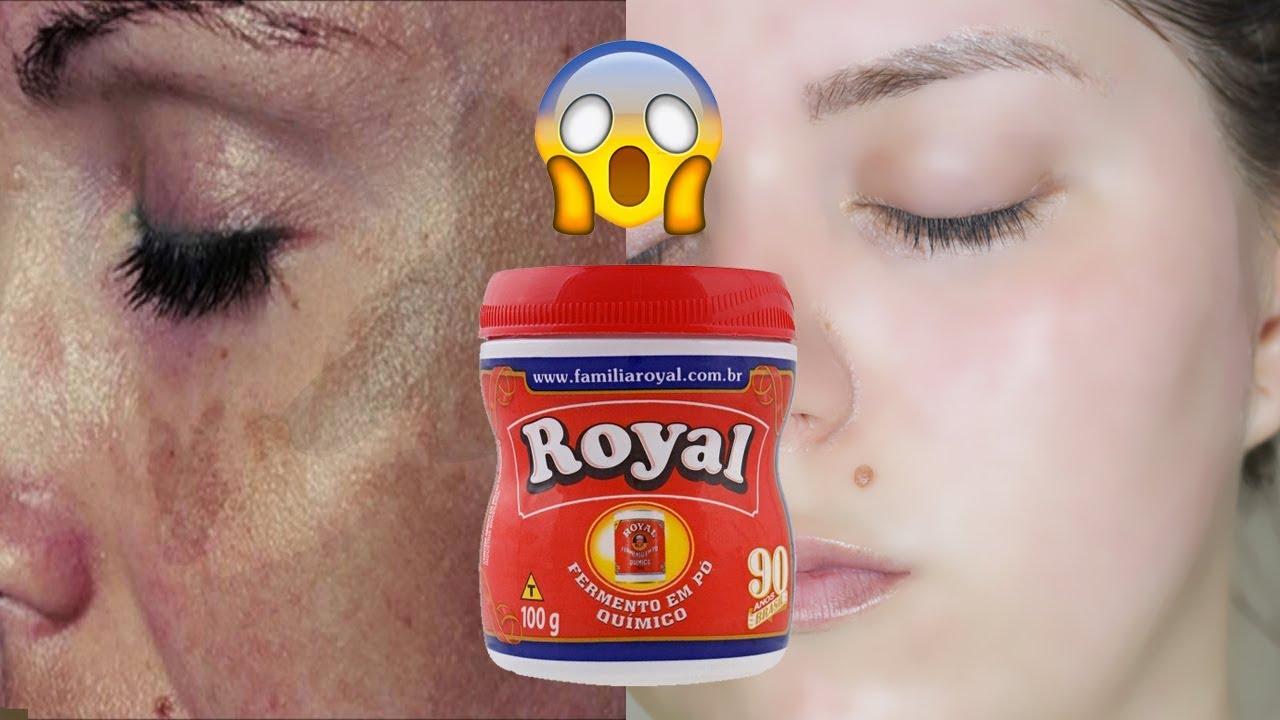 Pele de bebê em 2 dias – use para remover manchas e rugas da pele